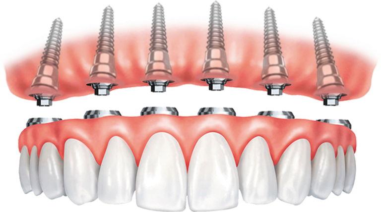 Full-arch dental implants
